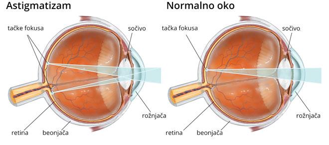 Šematski prikaz astigmatizama
