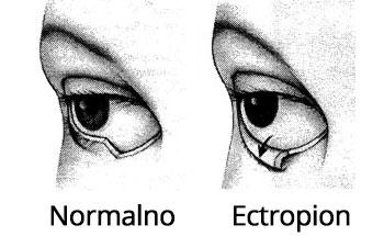 Normalno oko i Ectropion