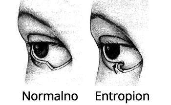 Normalan kapak i Entropion