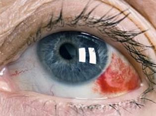 Subconjunktivalna hemoragija sufuzija