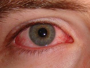 suvo oko