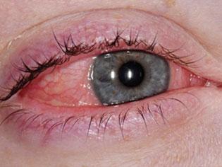 Alergije oka