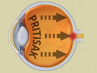 Glaukom i pritisak koji stvara na očni živac