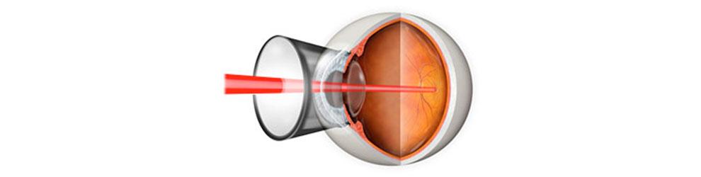Laser fotokoagulacija