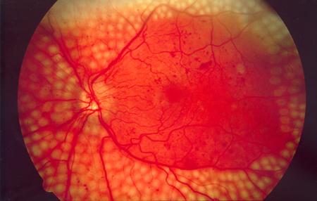 pan-retinalna laser fotokoagulacija